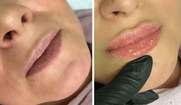 Увеличение и коррекция губ