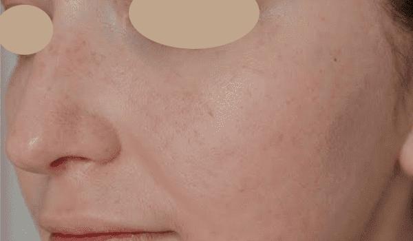 Программа HydraFacial лечение проблемной кожи