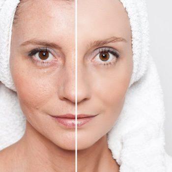 Как сделать кожу лица упругой, гладкой, ровной и подтянутой