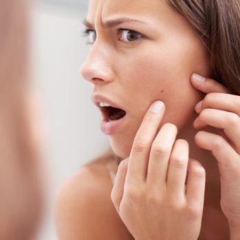 Лечение угревой болезни: чистка и удаление угрей на коже лица